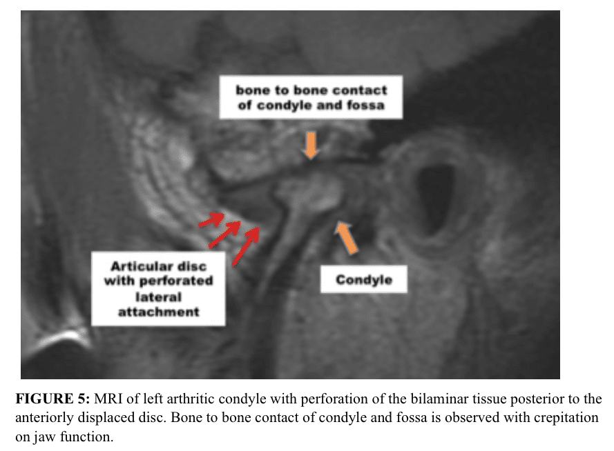 MRI of left arthritic condyle with perforation