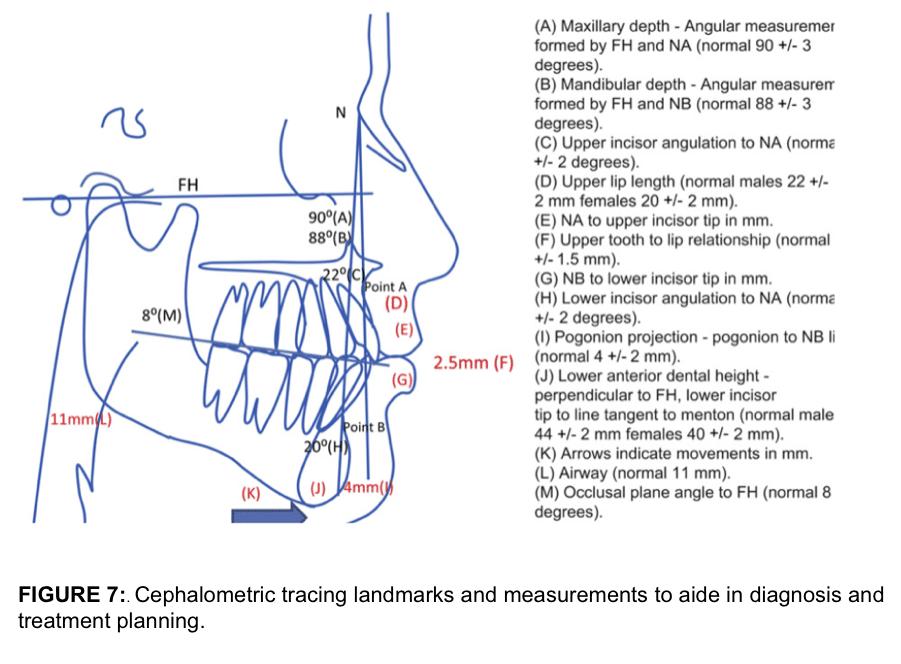 Cephalometric tracing landmarks