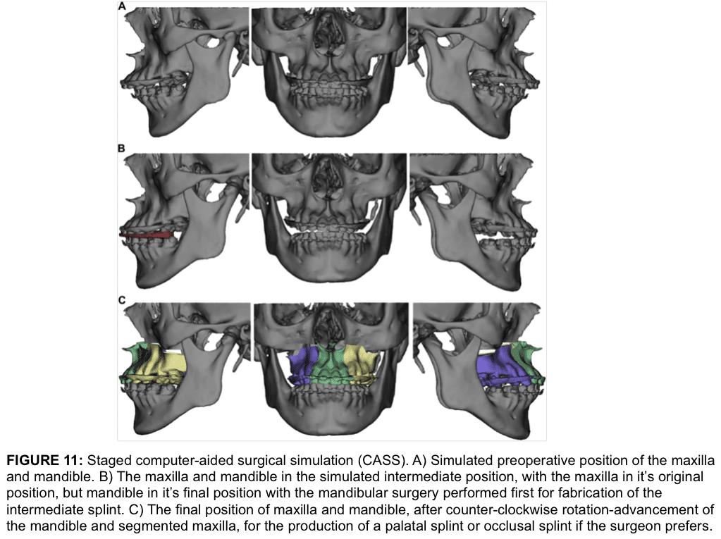 Split study polysomnography