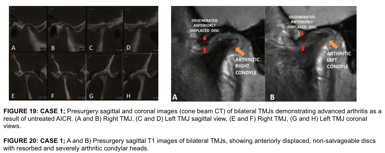 Total Temporomandibular Joint (TMJ) Replacement - Larry M. Wolford, DMD
