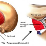 TMJ total joint replacement