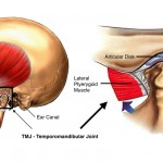 total temporomandibular joint (TMJ) replacement