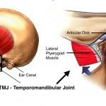 Temporomandibular Joint (TMJ) surgery
