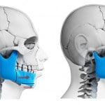 Dr Wolford best jaw surgery