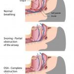 Dr. Larry M. Wolford, DMD treats Airway Obstructive Sleep Apnea Syndrome (OSA)