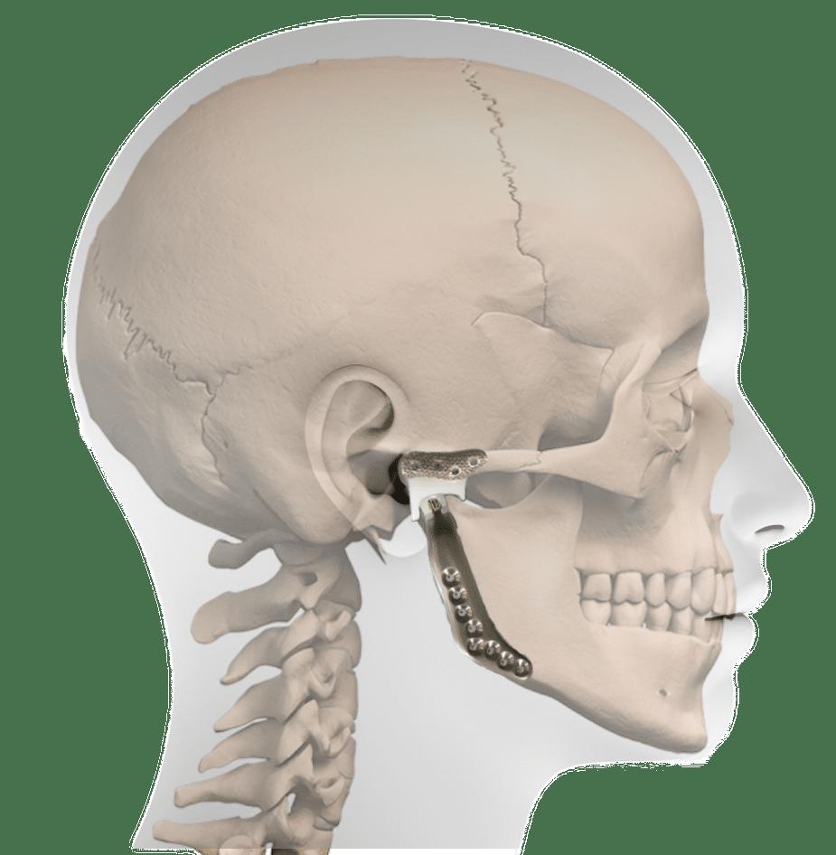 profile prosthesis
