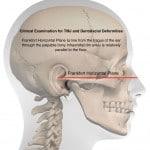 Clinical Examination for TMJ and Dentofacial Deformities