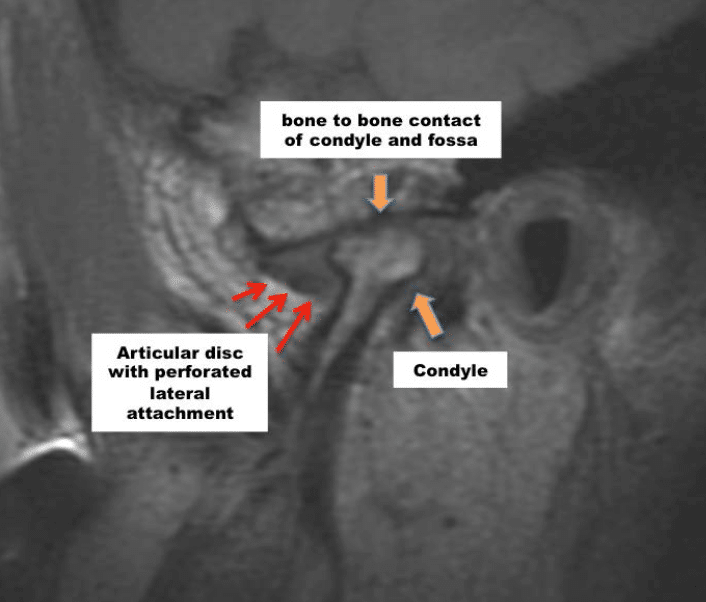 Dr Wolford MRI TMJ