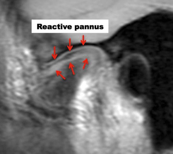 MRI TMJ reactive pannus