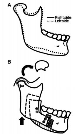 condylar hyperplasia 2