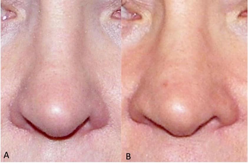 nasal obstruction surgery