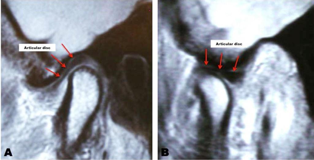 MRI of TMJ