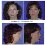 womn Before and After Hemifacial Microsomia