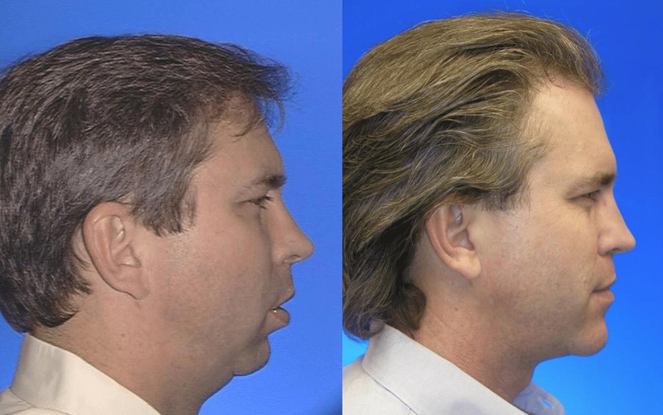 Before After Case 1b Sleep Apnea Surgery Larry M Wolford Dmd