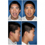 Orthognathic Surgery Dr Wolford