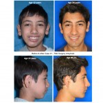 Before & After TMJ Surgery Ankylosis