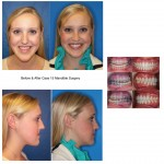 girl Before and After mandible corrective jaw surgery