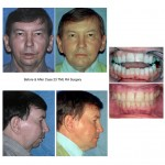 man Before & After TMJ RA surgery