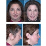 woman Before & After TMJ RA Surgery