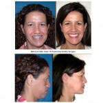 woman Before and After facial asymmetry surgery