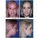 girl Before & After TMJ Children JRA Surgery