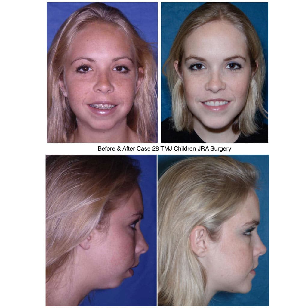 tmj surgery before and after