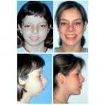 girl Before and After Hemifacical Microsomia